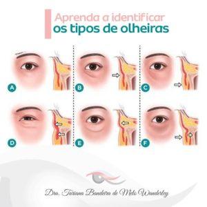 tipos de olheiras - clareador de olheiras confira a receita