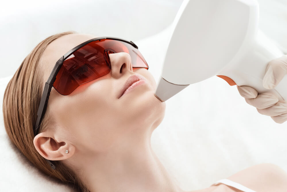 Tratamento de laser para clarear a pele